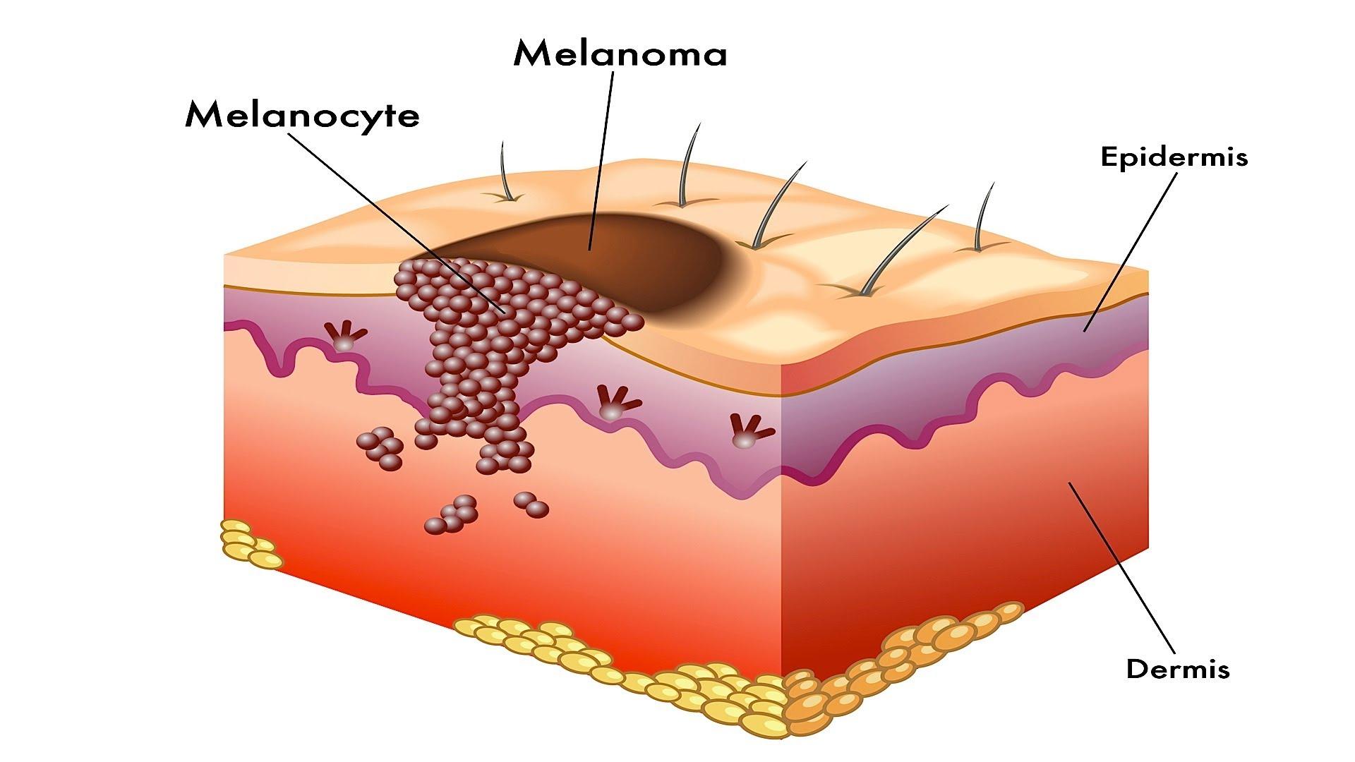 Melanoma_viagra